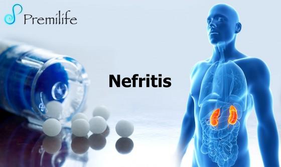 nephritis-spanish
