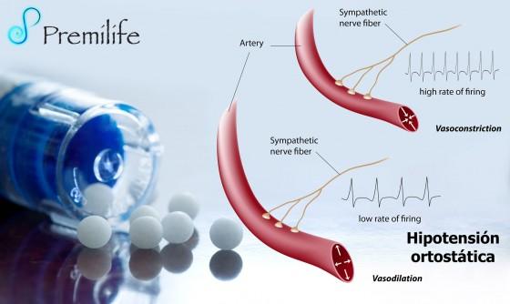 orthostatic-hypotension-spanish