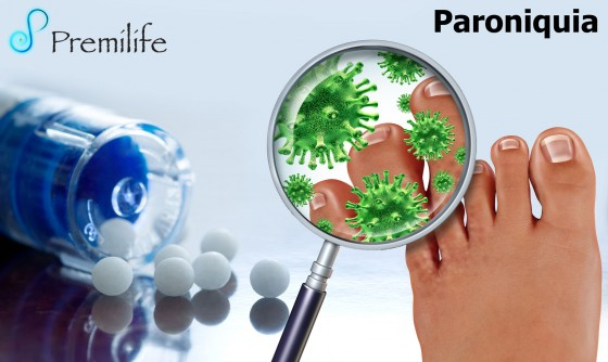 paronychia-spanish