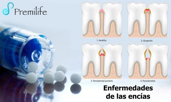 periodontal-disease-spanish