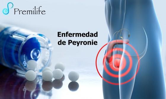 peyronie's-disease-spanish