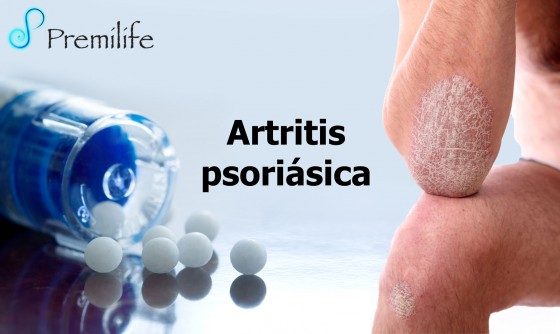 psoriatic-arthritis-spanish