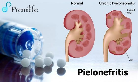 pyelonephritis-spanish