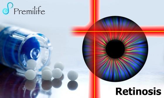 retinitis-spanish