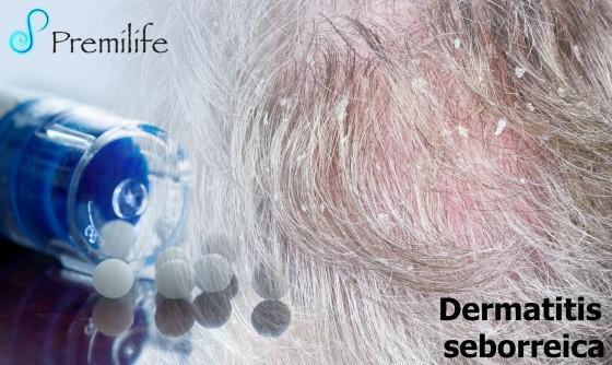 seborrheic-dermatitis-spanish