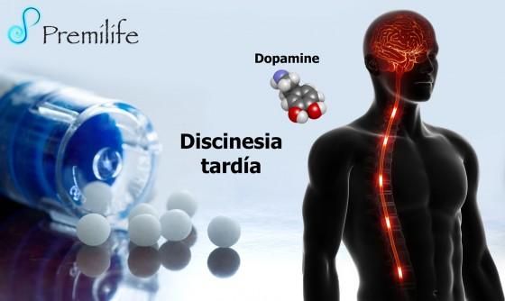 tardive-dyskinesia-spanish