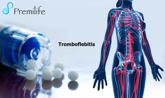 thrombophlebitis-spanish
