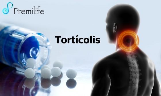 torticollis-spanish
