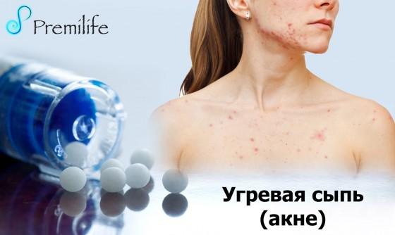 Acne-russian