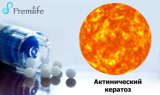 Actinic-Keratosis-russian
