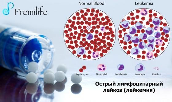 Acute-Lymphocytic-Leukemia-russian
