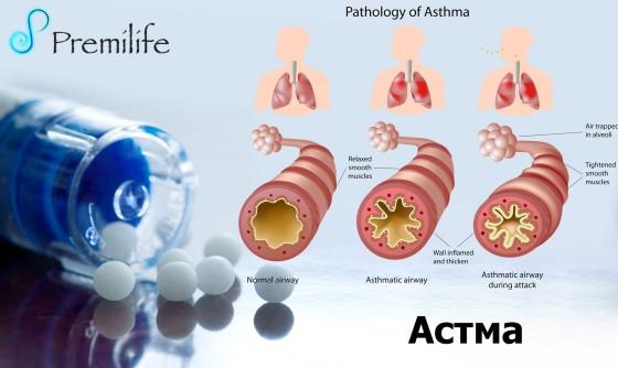 Asthma-russian