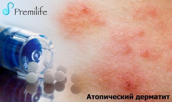 Atopic-Dermatitis-russian