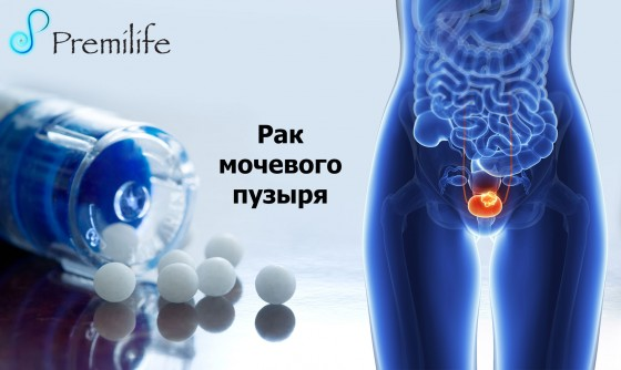Bladder-Cancer-russian