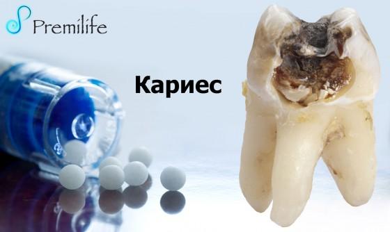 Cavities-russian