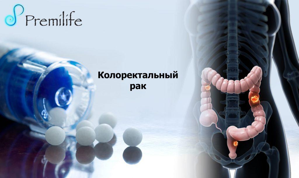Колоректальный рак
