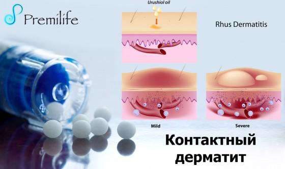 Contact-dermatitis-russian