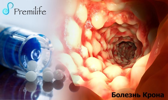 Crohn's-Disease-russian