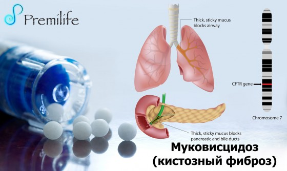 Cystic-Fibrosis-russian