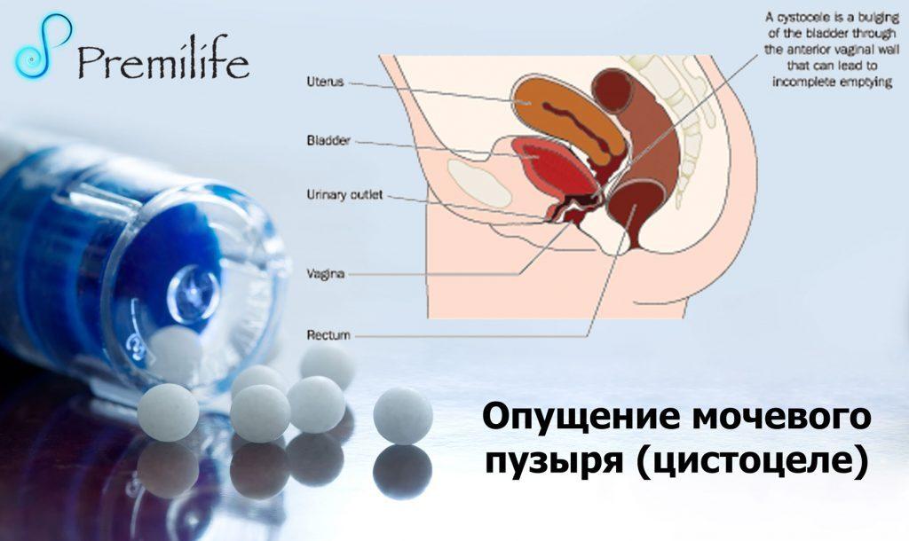 profilaktika-opusheniya-stenok-vlagalisha