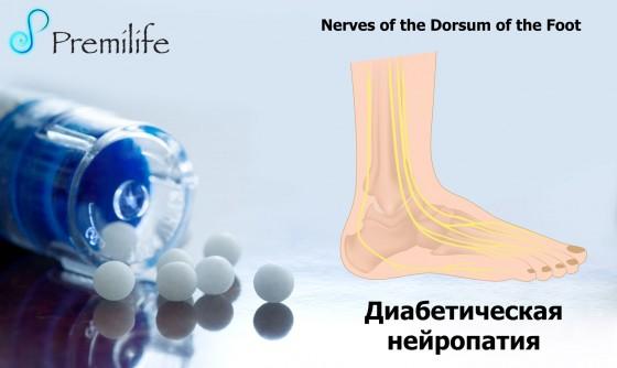 Diabetic-Neuropathy-russian