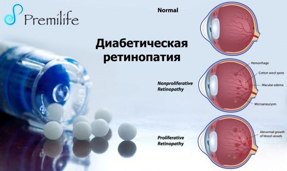 Diabetic-Retinopathy-russian