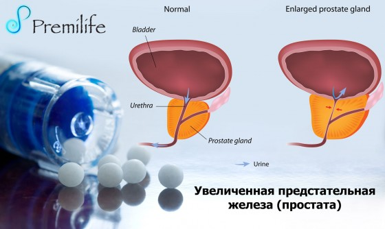 Enlarged-prostate-russian