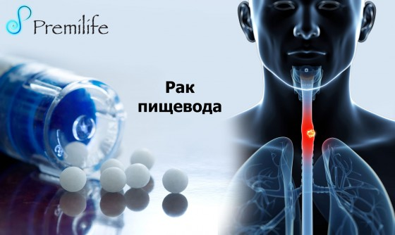 Esophageal-Cancer-russian
