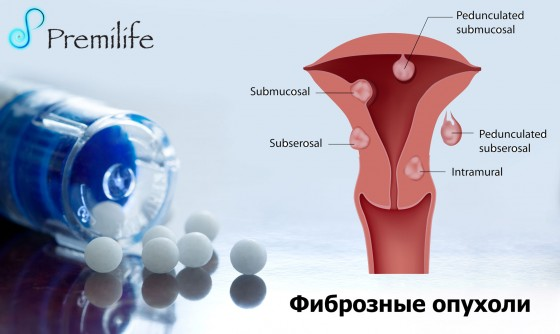 Fibroids-russian