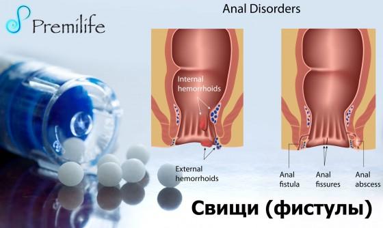 Fistulas-russian