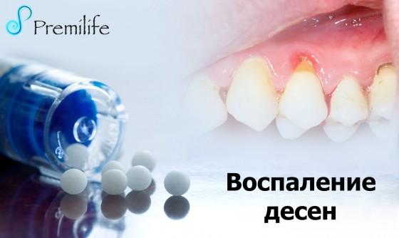 Gum-Disease-russian