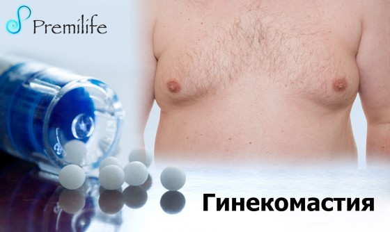 Gynecomastia-russian