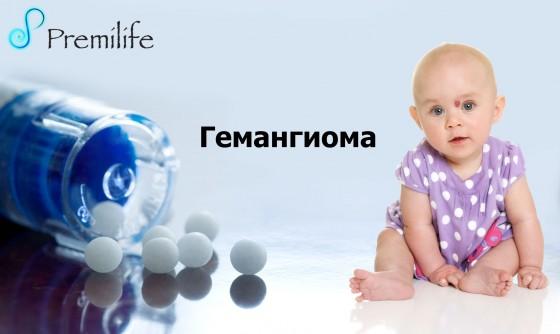 Hemangioma-russian