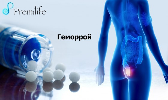 Hemorrhoids-russian