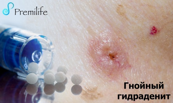 Hidradenitis-Suppurativa-russian