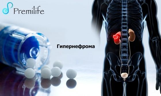 Hypernephroma-russian