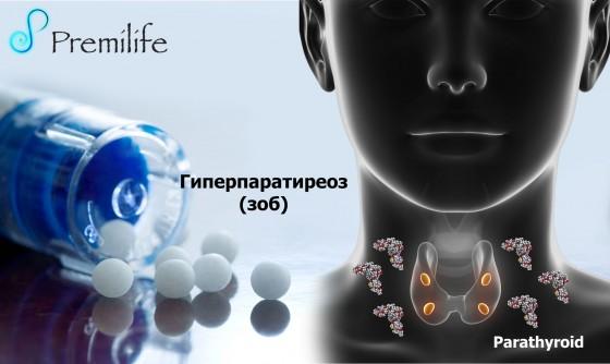 Hyperparathyroidism-russian