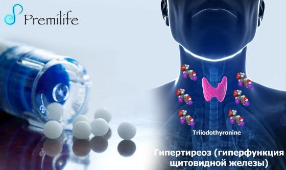 Hyperthyroidism-russian