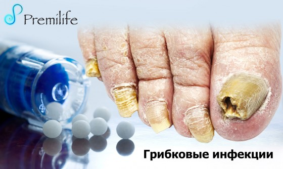 Infections-Fungal-russian