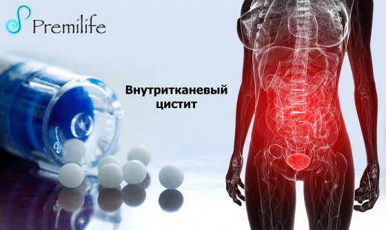 Interstitial-Cystitis-russian