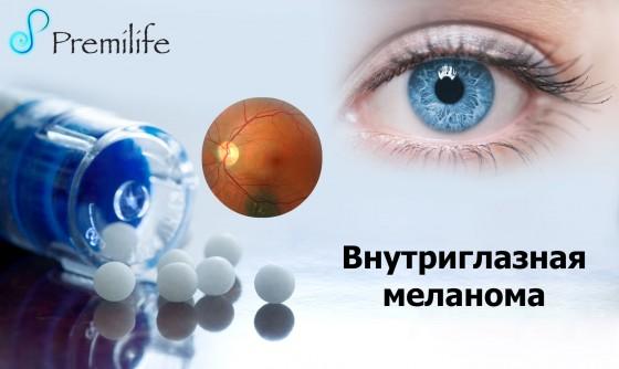 Intraocular-Melanoma-russian