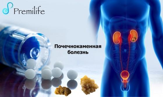 Kidney-Stones-russian
