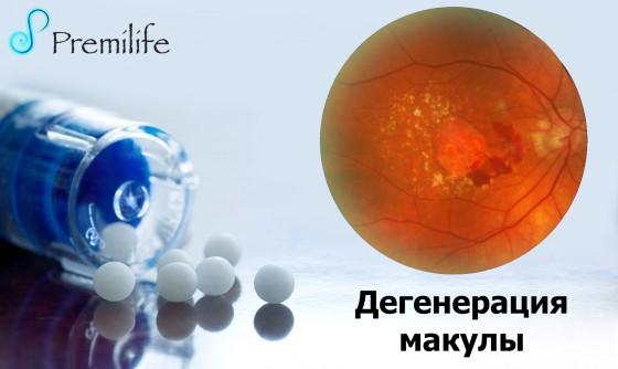 Macular-Degeneration-russian