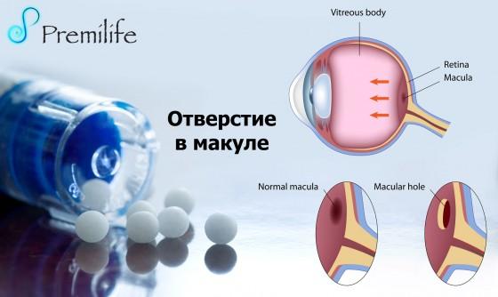 Macular-hole-russian