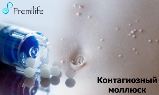Molluscum-Contagiosum-russian