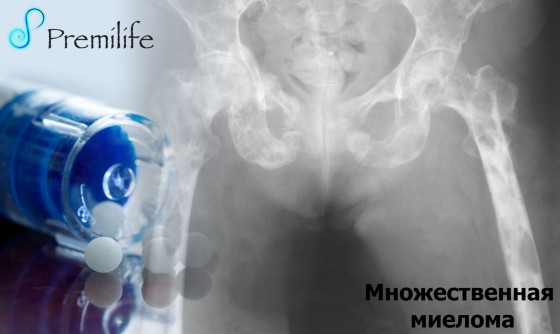 Multiple-Myeloma-russian