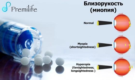Myopia-Nearsightedness-russian