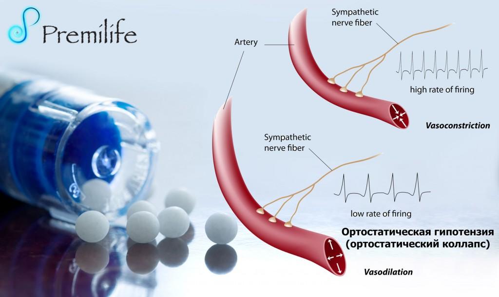 Ортостатическая гипотензия что это и как лечить