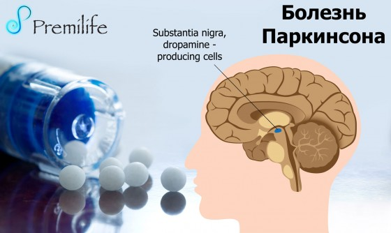 Parkinson's-disease-russian