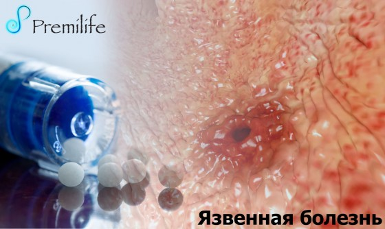 Peptic-Ulcer-russian